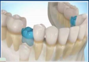 cambio de dientes