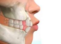 dentes-frente-cruzados