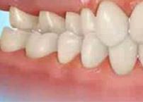 dentes-tras-cruzados