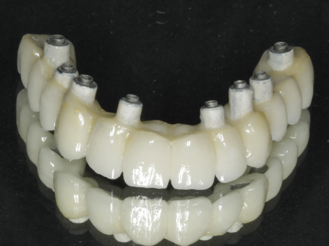 protesis dental completa sobre implantes